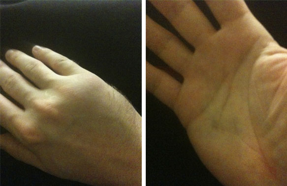 Front and Back of my hand with fractured fifth metacarpal